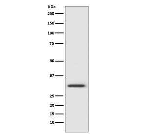Western blot testing of human HeLa cell lysate with Annexin V antibody. Predicted molecular weight ~36 kDa.