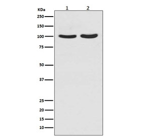 Western blot testing of human 1) T-47D and 2) LNCaP cell lysate with Androgen Receptor antibody. Predicted molecular weight ~99 kDa.