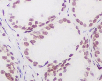 IHC staining of FFPE human prostate tissue with Androgen Receptor antibody. HIER: boil tissue sections in pH6, 10mM citrate buffer, for 10-20 min and allow to cool before testing.