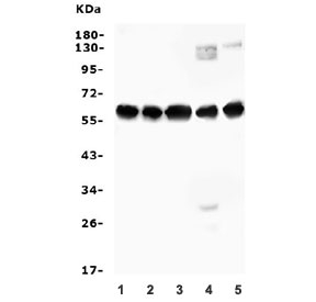 Western blot testing of human 1) A549, 2) A431, 3) HEK293, 4) ThP-1 and 5) Caco-2 cell lysate with AVPR1A antibody. Expected molecular weight: 47-85 kDa depending on glycosylation level.