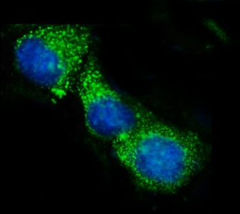 Immunofluorescent staining of FFPE human MCF7 cells with ACADS antibody (green) and DAPI nuclear stain (blue). HIER: steam section in pH6 citrate buffer for 20 min.