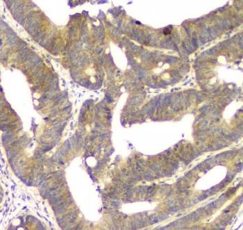 IHC staining of FFPE human intestinal cancer with ALKBH1 antibody. HIER: boil tissue sections in pH8 EDTA for 20 min and allow to cool before testing.
