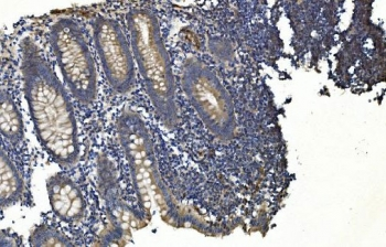 IHC staining of FFPE human appendicitis tissue with APPL1 antibody. HIER: boil tissue sections in pH8 EDTA for 20 min and allow to cool before testing.