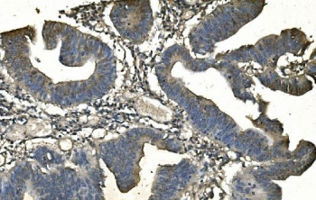 IHC staining of FFPE human rectal cancer with ANPEP antibody. HIER: boil tissue sections in pH8 EDTA for 20 min and allow to cool before testing.