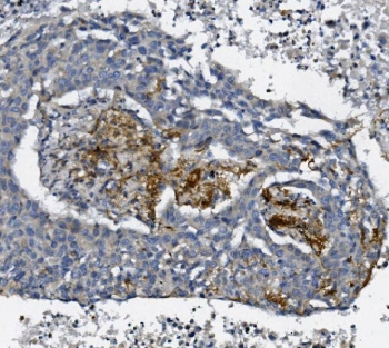 IHC staining of FFPE human lung cancer with AFAP1 antibody. HIER: boil tissue sections in pH8 EDTA for 20 min and allow to cool before testing.