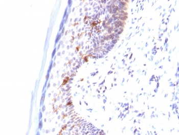 IHC testing of human skin stained with CD1a antibody (clone C1A/711).