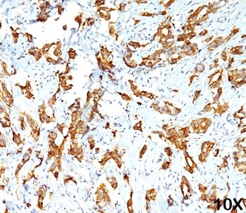 IHC testing of FFPE human breast carcinoma (10X) stained with HSP27 antibody (clone G3.1).