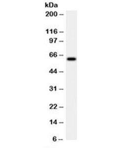 Western blot testing of HeLa cell lysate with HSP60 antibody (clone LK2).