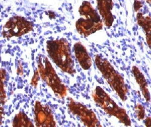 Thyroglobulin antibody 2H11 or TGB04 immunohistochemistry thyroid