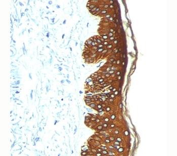 Basic Cytokeratin antibody AE3 immunohistochemistry skin