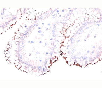 IHC testing of formalin/paraffin human stomach stained with Helicobacter pylori antibody.