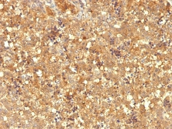 IHC: Formalin-fixed, paraffin-embedded human fetal liver stained with AFP antibody (MBS-12).
