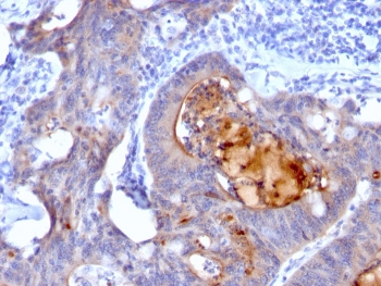 IHC: Formalin-fixed, paraffin-embedded human colon carcinoma stained with recombinant Secretory Component Glycoprotein antibody (rECM1/792).