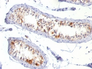 IHC: Formalin-fixed, paraffin-embedded human testis stained with Melan-A antibody (MLANA/788).