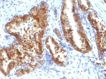 Formalin-fixed, paraffin-embedded human prostate carcinoma stained with AMACR antibody.