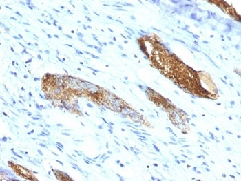 IHC: Formalin-fixed, paraffin-embedded human colon carcinoma stained with Blood Group Antigen A antibody (33C13)