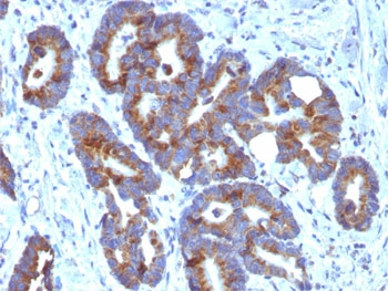IHC: FFPE human colorectal carcinoma tested with ABO antibody (HE-10)