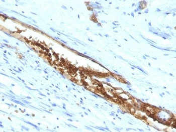 IHC: Formalin-fixed, paraffin-embedded human colon carcinoma stained with Blood Group Antigen A antibody (3-3A)