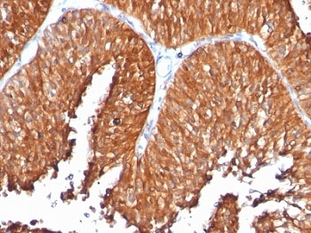 Formalin-fixed, paraffin-embedded human bladder carcinoma stained with anti-HSP60 antibody (clone SPM253).