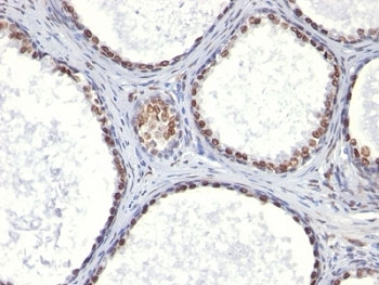 IHC: Formalin-fixed, paraffin-embedded human prostate carcinoma stained with AR antibody (AR441).