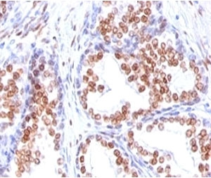 IHC: Formalin-fixed, paraffin-embedded human prostate carcinoma stained with Androgen Receptor antibody (DHTR/882).