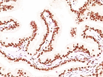 IHC: Formalin-fixed, paraffin-embedded human prostate carcinoma stained with Androgen Receptor antibody (AR441 + DHTR/882).
