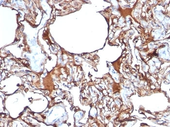 IHC: Formalin-fixed, paraffin-embedded human melanoma stained with anti-CD146 antibody (SPM620)