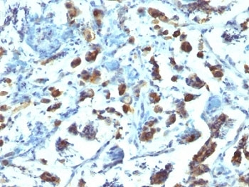 IHC: Formalin-fixed, paraffin-embedded human gastric carcinoma stained with anti-MUC3 antibody (SPM200).
