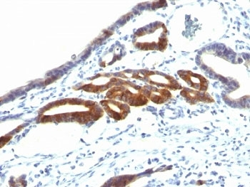 IHC: Formalin-fixed, paraffin-embedded human gastric carcinoma stained with anti-MUC6 antibody (SPM598).