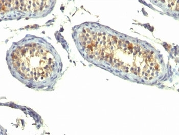 IHC: Formalin-fixed, paraffin-embedded human testicular carcinoma stained with TGF-alpha antibody (clone P/T1).
