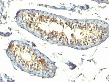 IHC: Formalin-fixed, paraffin-embedded human testicular carcinoma stained with TGF-alpha antibody (TG86 + P/T1).
