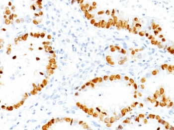 IHC: Formalin-fixed, paraffin-embedded human lung Adenocarcinoma stained with TTF-1 antibody (NX2.1/690)