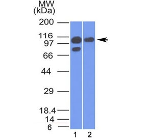 Western blot testing of human 1) A431 and 2) MCF7 cell lysate with Alpha Catenin antibody (clone 1G5). Expected molecular weight ~102 kDa.