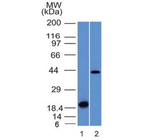 Western blot testing of 1) a partial recombinant protein and 2) human liver lysate with Aurora B antibody (clone AURKB/1521). Predicted molecular weight: 39-45 kDa