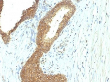 IHC testing of FFPE human colon carcinoma with Alkaline Phosphatase antibody (ALPL/597). Required HIER: boil tissue sections in 10mM Tris with 1mM EDTA, pH 9, for 10-20 min followed by cooling at RT for 20 min.