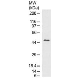Western blot testing of human liver lysate with recombinant Perilipin 2 antibody (clone ADPN1-2R). Predicted molecular weight ~48 kDa.