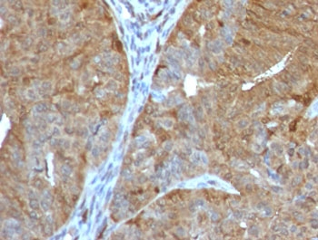IHC testing of FFPE human prostate cancer with AKR1B1 antibody (clone ADRD1-1). Required HIER: boil tissue sections in 10mM citrate buffer, pH6, for 10-20 min followed by cooling at RT for 20 min.