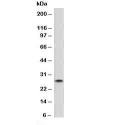 Western blot analysis of human spleen lysate and Kappa antibody (clone KC3L-1). Expected molecular weight: 23-25 kDa.
