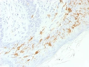 IHC testing of FFPE human skin with recombinant CD1a antibody (clone C1A/1506R). Required HIER: boil tissue sections in 10mM Citrate buffer, pH 6, for 10-20 min.