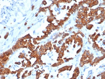 IHC testing of FFPE human thyroid carcinoma and recombinant EpCAM antibody (clone EGP40/1555R). Required HIER: steam sections in pH6 citrate buffer for 10-20 min.
