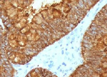 IHC testing of FFPE human colon tissue with recombinant AURKB antibody (clone ARRK2-2R). HIER: boil tissue sections in pH6, 10mM citrate buffer, for 10-20 min followed by cooling at RT for 20 min.