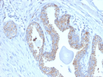 IHC staining of FFPE human prostate carcinoma with TMEPAI antibody (clone PMEPA1/2697). HIER: boil tissue sections in pH 9 10mM Tris with 1mM EDTA for 10-20 min and allow to cool before testing.