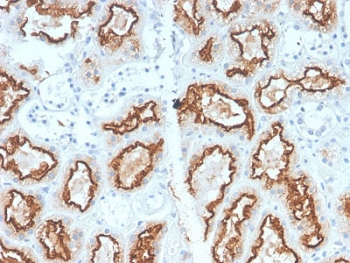 IHC staining of FFPE human renal cell carcinoma with recombinant Carbonic Anhydrase 9 antibody (clone CA9/2993R). HIER: boil tissue sections in pH6, 10mM citrate buffer, for 10-20 min and allow to cool before testing.