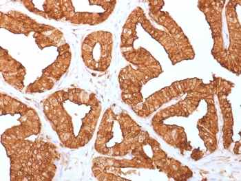 IHC staining of FFPE human prostate with Annexin A1 antibody (clone ANXA1/1671). HIER: boil tissue sections in pH6, 10mM citrate buffer, for 10-20 min and allow to cool before testing.