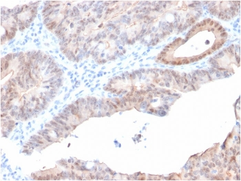 IHC staining of FFPE human prostate carcinoma with AKR1C2 antibody (clone CPTC-AKR1C2-1). HIER: boil tissue sections in pH 9 10mM Tris with 1mM EDTA for 10-20 min and allow to cool before testing.