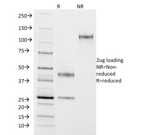 SDS-PAGE analysis of purified, BSA-free ASRGL1 antibody (clone CRASH/1290) as confirmation of integrity and purity.