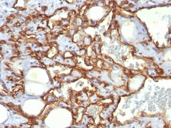 IHC: Formalin-fixed, paraffin-embedded human Angiosarcoma stained with anti-CD31 antibody (clone SPM532).