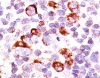 IHC: Formalin-fixed, paraffin-embedded human Hodgkin's lymphoma stained with anti-Bcl-X antibody (SPM165).