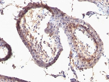 IHC: Formalin-fixed, paraffin-embedded human testicular carcinoma stained with anti-TGF alpha antibody (clone SPM542).