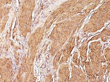 IHC:  Formalin-fixed, paraffin-embedded human Leiomyosarcoma stained with Muscle Specific Actin antibody (clone SPM160)